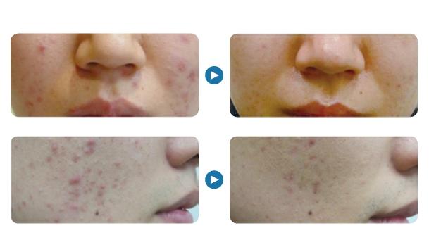 aqua acne